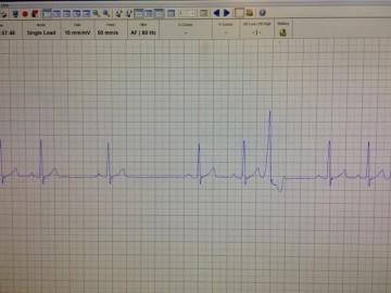 Informasjon/svar fra Norsk Kennel Klub om håndtering av hjertesykdommen ARVC